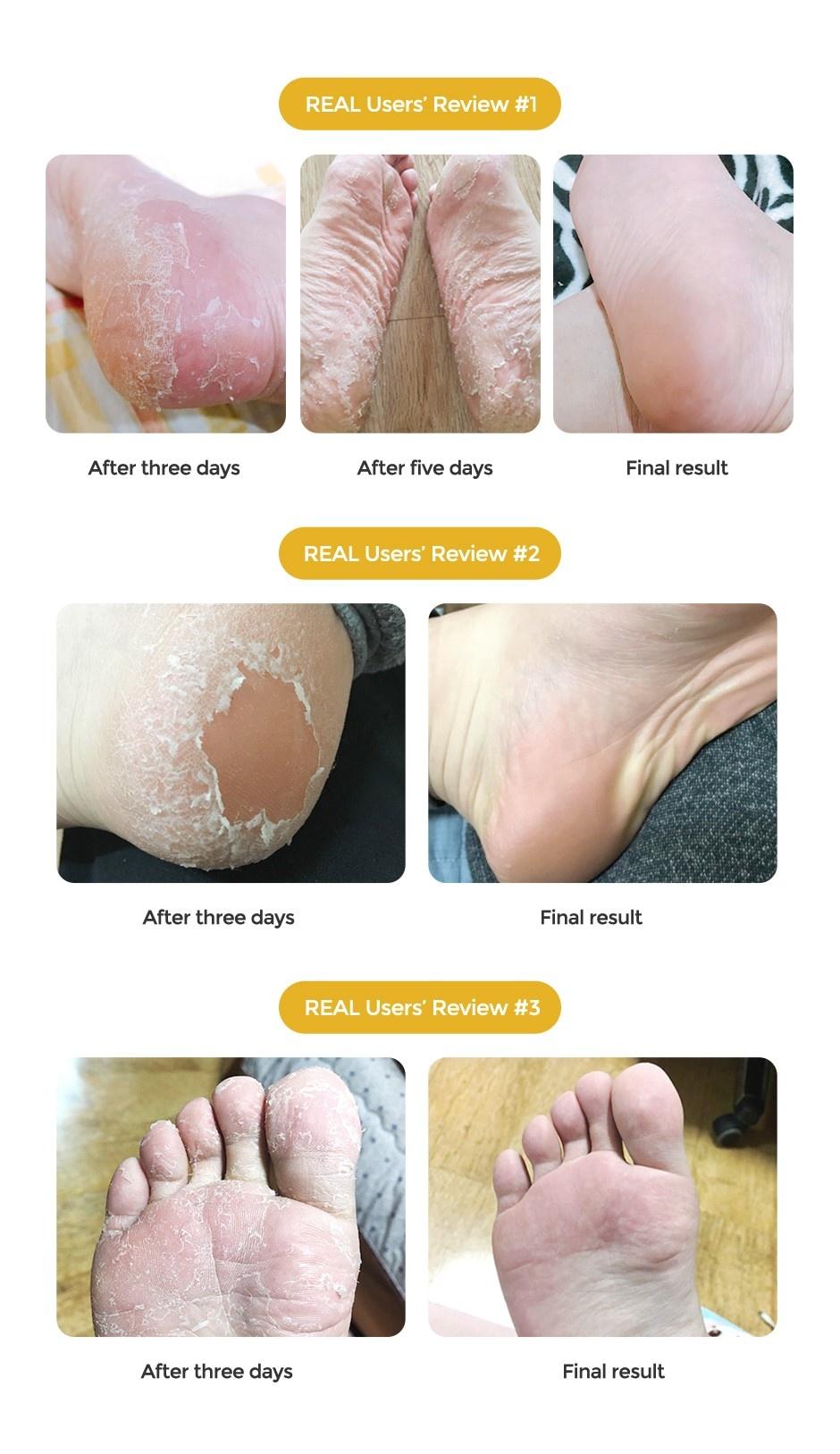 Exfoliating Foot Mask (Regular)-4