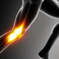 How to Make Your Knees Live Longer