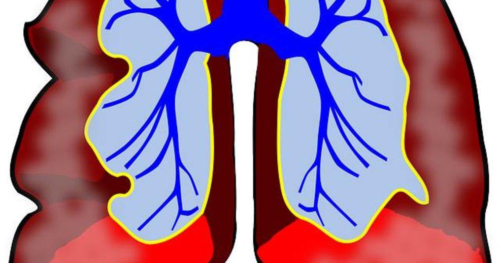 CBD Druppels tegen Astma
