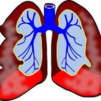 CBD Olie tegen Astma