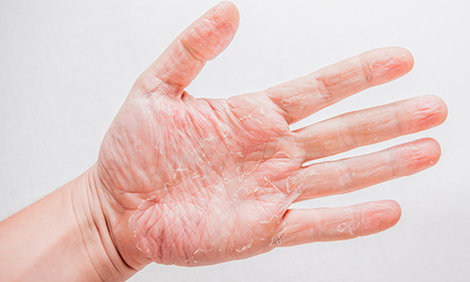 Wat is een atopische huid?