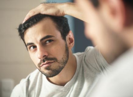 Haaruitval en kaalheid bij mannen: waar komt het vandaan en wat kunt u ertegen doen?