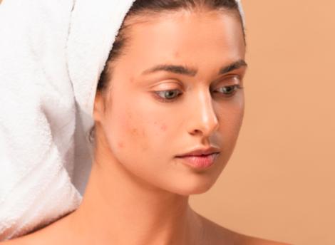 Bestrijd jeugdpuistjes met deze skin care routine!