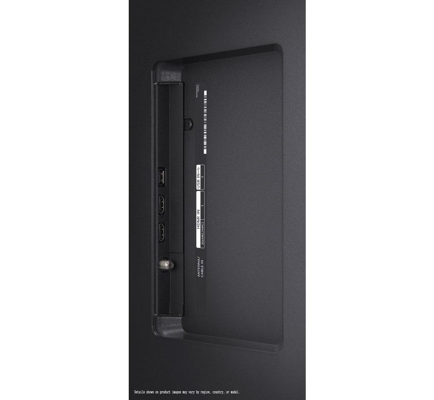LG 55UP78006LB - 55 inch Led tv (2021)