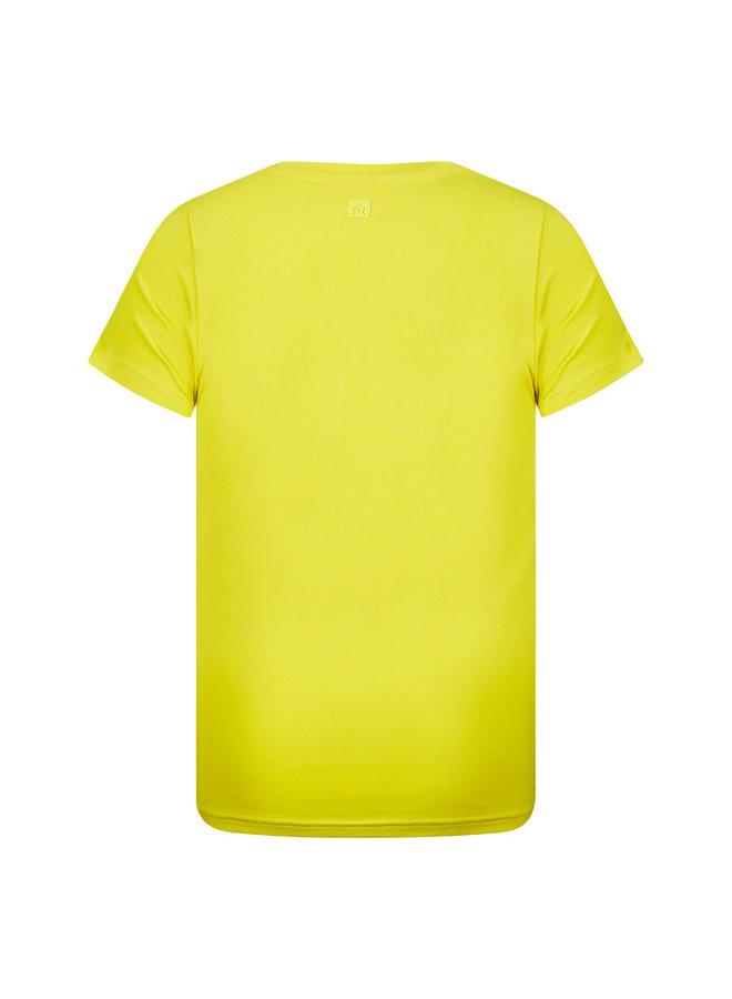 RJB-11-210 Sean (Fresh yellow)