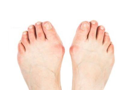 Hardloopschoenen voor brede voeten!