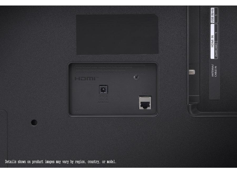 LG 55UP78006LB - 55 inch 4K (2021)
