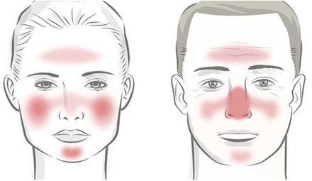 Consejos de tratamiento para la rosácea