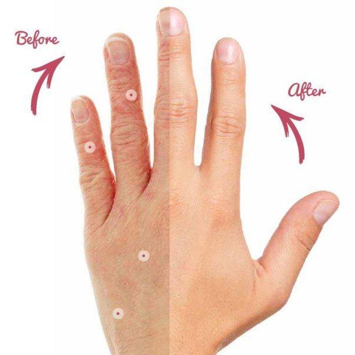 Eczema