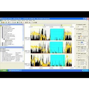 Philips Respironics ActiWare Software Package