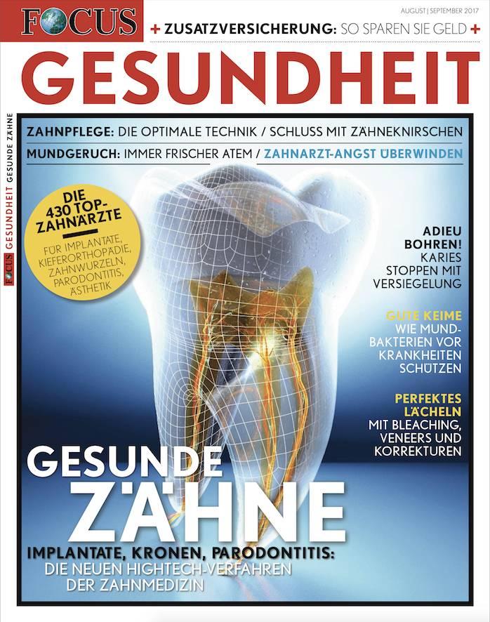 FOCUS-GESUNDHEIT FOCUS Gesundheit - Implantante, Kronen, Paradontitis - Die neue Hightech-Verfahren der Zahnmedizin