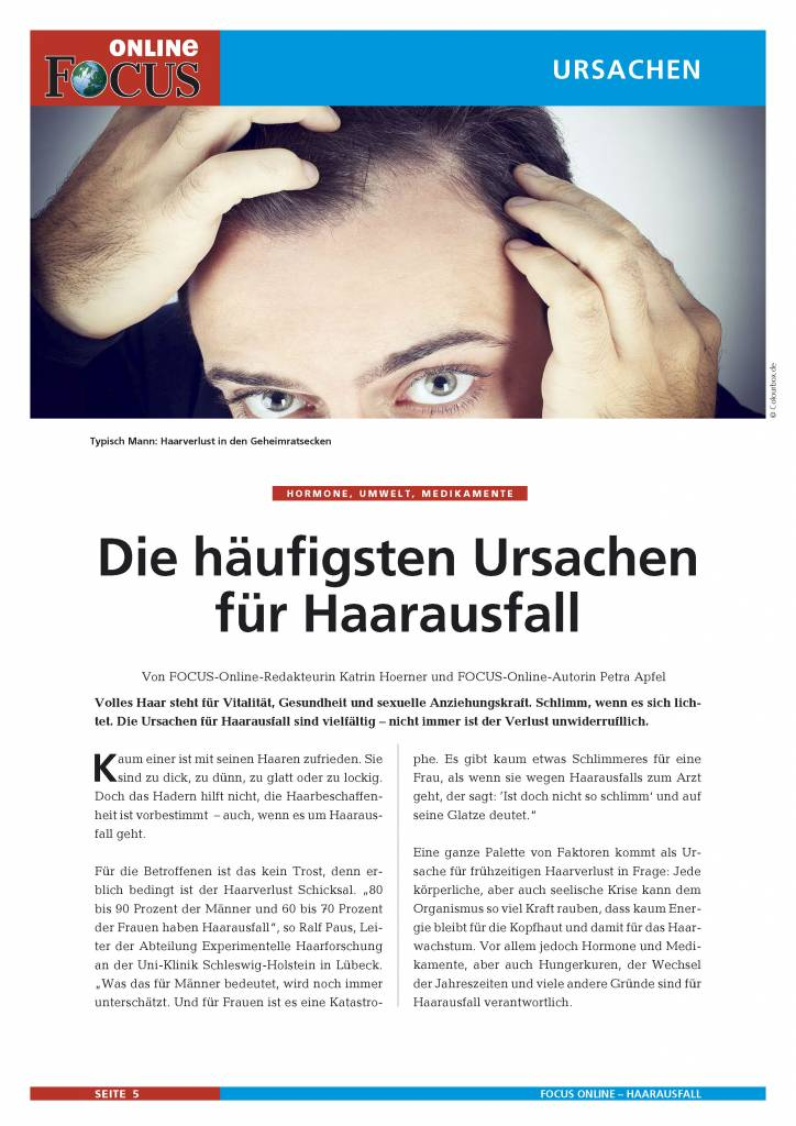 FOCUS Online Haarausfall bei Männern