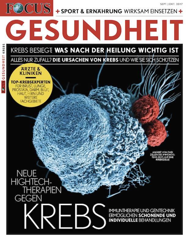 FOCUS-GESUNDHEIT FOCUS Gesundheit - Neue Hightech-Therapien gegen Krebs