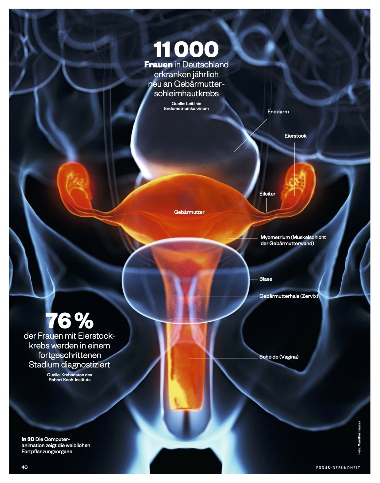 FOCUS-GESUNDHEIT FOCUS Gesundheit - Krebs 2021