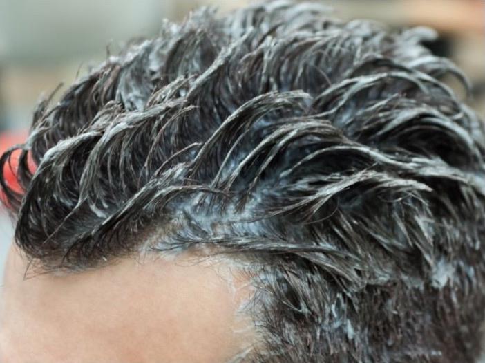 anti-roos shampoo mannen