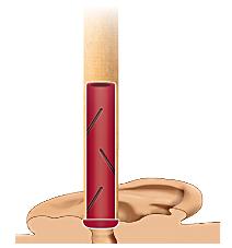filtre bougies d'oreille biosun