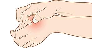 Artikel über Ekzeme & Hautkrankheiten