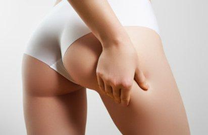 Ist Cellulite vererbbar?