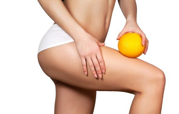 Cellulite an den Oberschenkeln