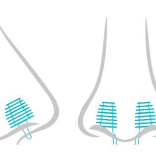 Nosa Nosa plugs