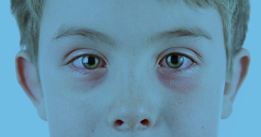Opgezwollen oogleden na slapen: oorzaak