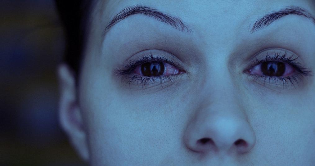 Rode ogen na het slapen door allergie