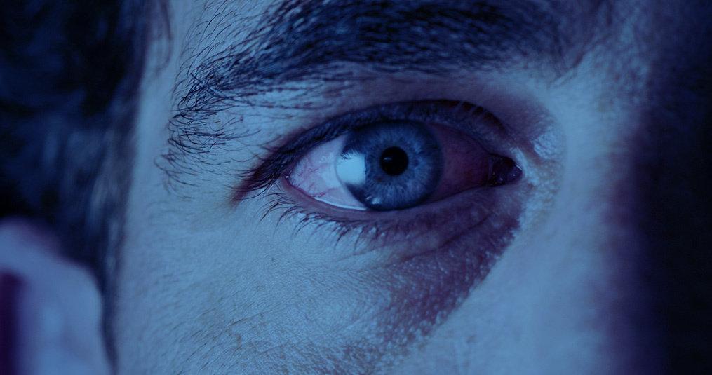 Rode jeukende ogen door allergie