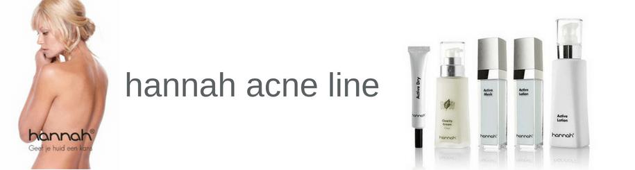 Last van acne