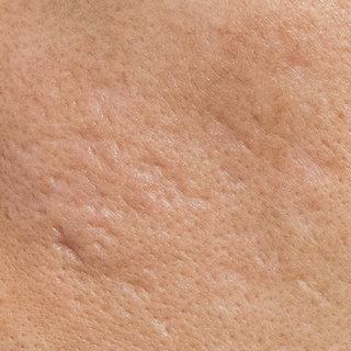 Littekens?  Hiervoor hebben wij de juiste huidverzorgingsproducten.