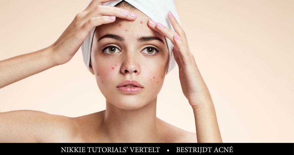 Nikkietutorials vertelt: Last van acné? Zo kom je er vanaf!