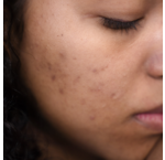 What to do about acne?