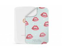 Special Edition Kisses design HP Sprocket Skin