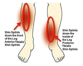Scheenbeenklachten Shin Splints