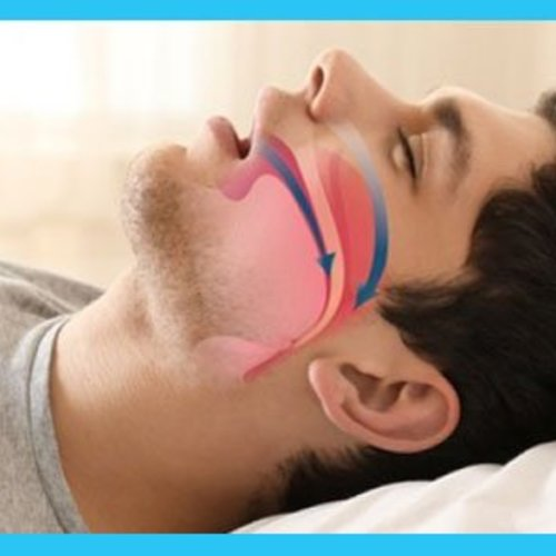 How sleep apnea affects everyday life