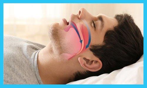 Slaapapneu beïnvloedt uw dagelijkse leven