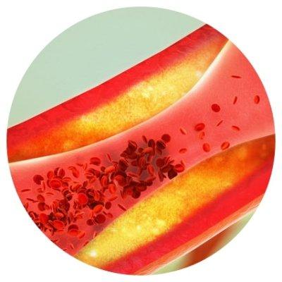 Mortalité cardiovasculaire élevée due à un manque de vitamine K2