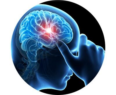 Kunnen voedingssupplementen migraine verlichten?