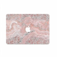 PINK SPARKLES - MIM LAPTOP STICKER