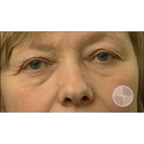 Wrinkle Stop Eye