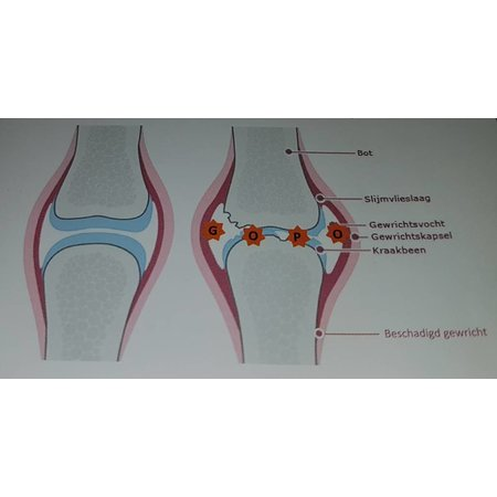 Litopet  Litopet helpt bij problemen van gewrichten, pezen, banden en spieren