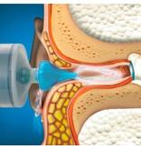 Dos Medical Ohrenschmalz-Entfernungs-System™