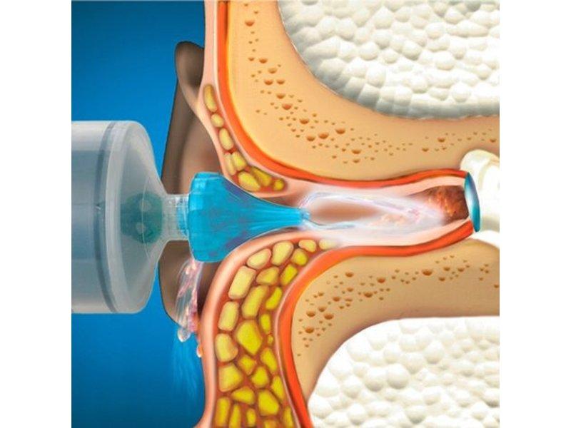 Dos Medical oorsmeer-verwijder-spuit™