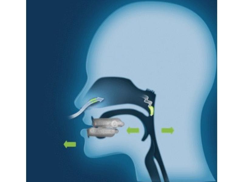 Oniris anti-snoring device (MRD)