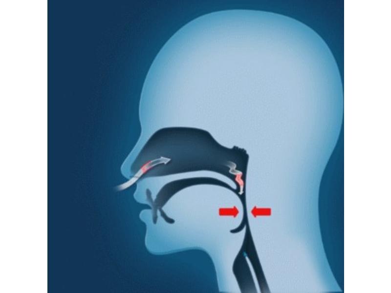 Oniris anti-snurkbeugel (MRA)