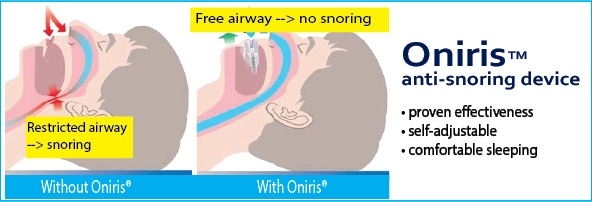 Oniris anti-snoring device