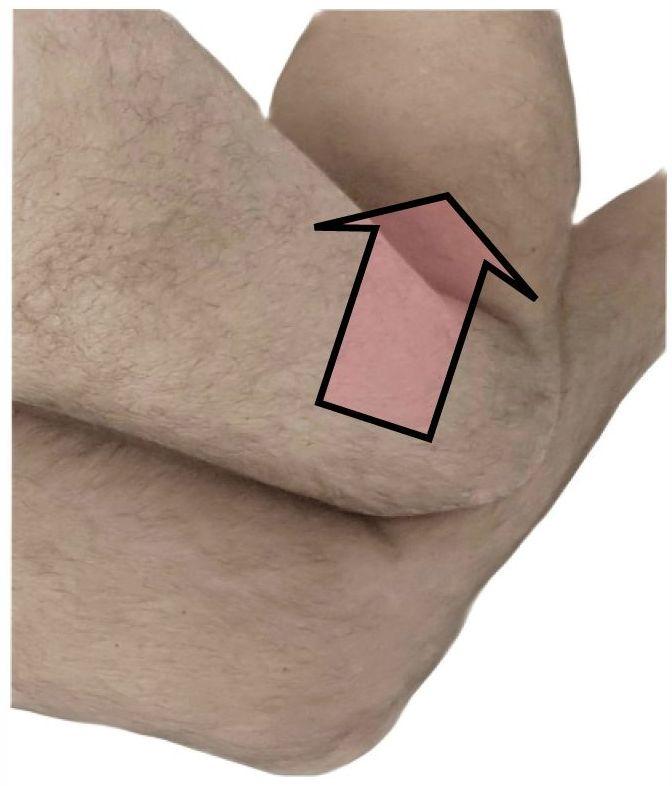 Knie Ausweichbewegung