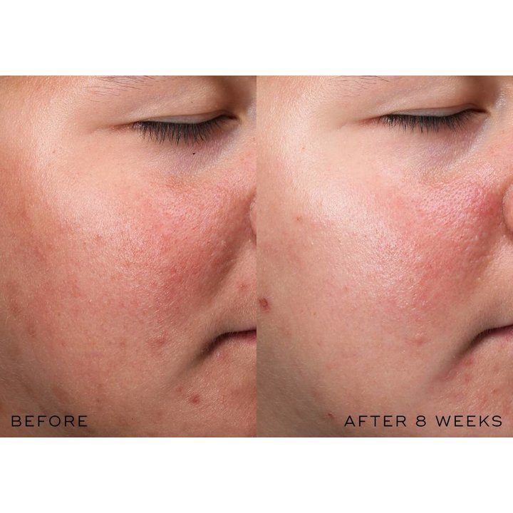 Medik8 r-Retinoate Intense - Youth Activating Cream