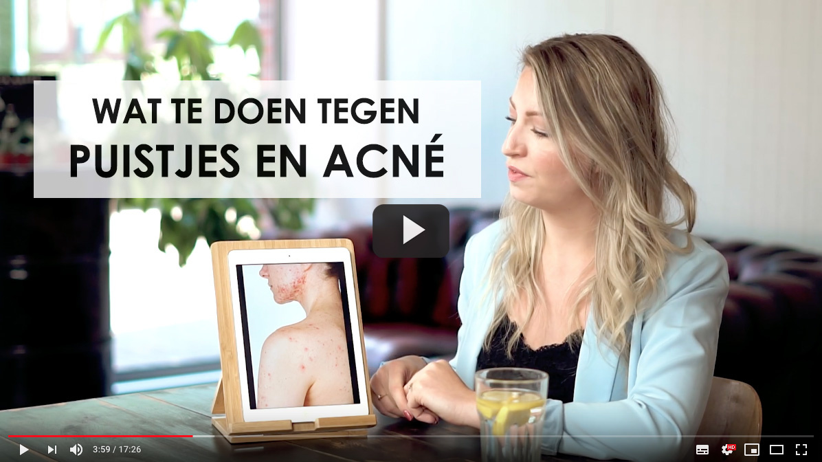 Wat te doen tegen puistjes en acné