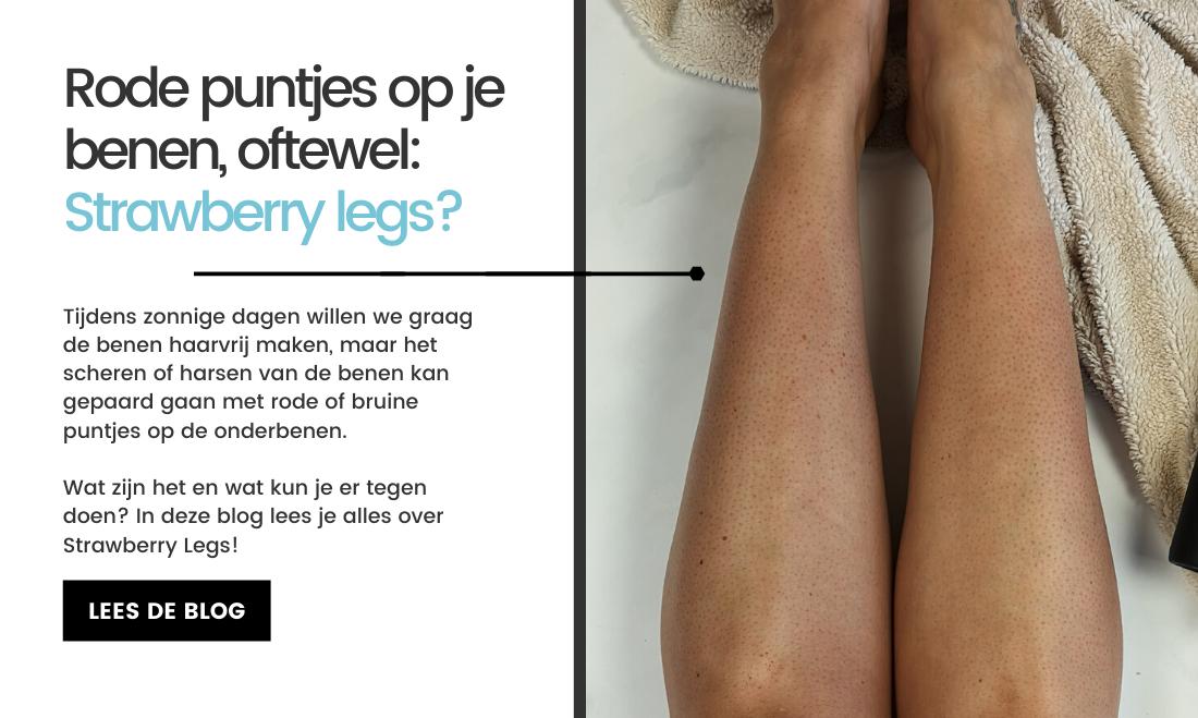 Rode of bruine puntjes op je benen, oftewel Strawberry Legs?