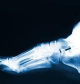 MYSOLE Mysole Anatomical Work steunzolen
